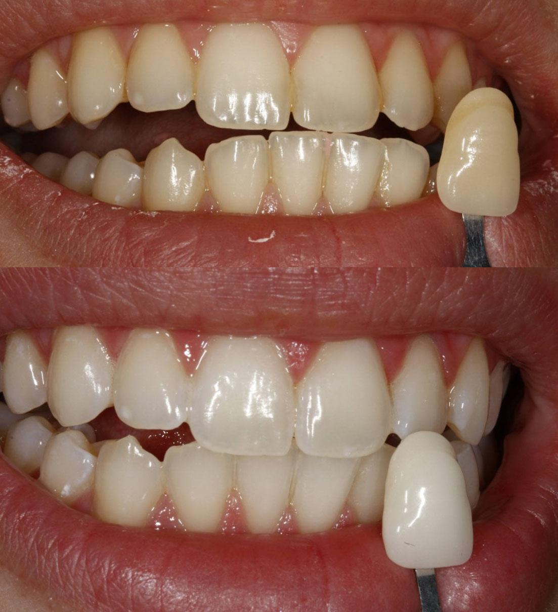полоски для отбеливания зубов новосибирск